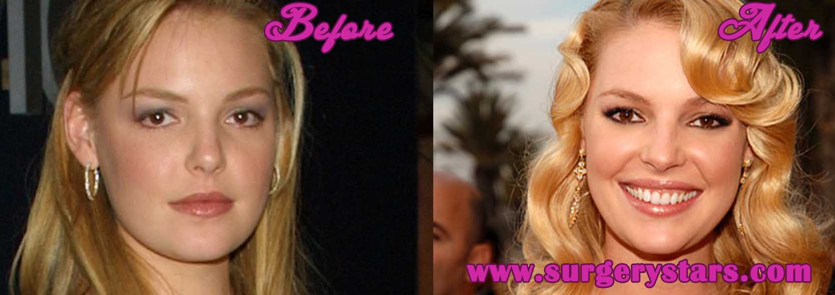 Heigl Plastic Surgery Before After photo - 1