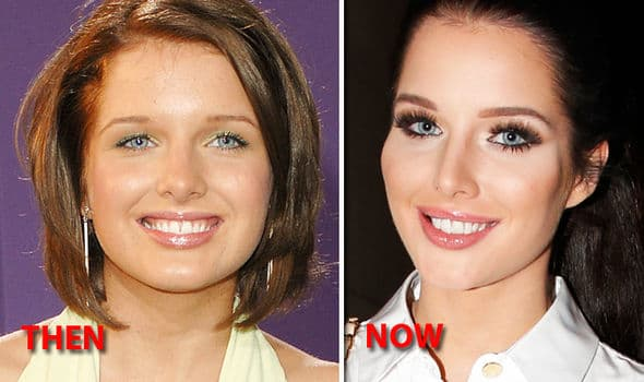 Helen George Plastic Surgery Before And After photo - 1