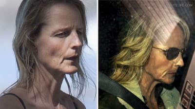 Helen Hunt Before And After Plastic Surgery photo - 1