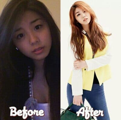 Hello Venus Before Plastic Surgery photo - 1