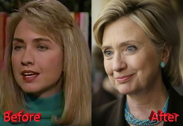 Hillary Clinton Before And After Plastic Surgery photo - 1
