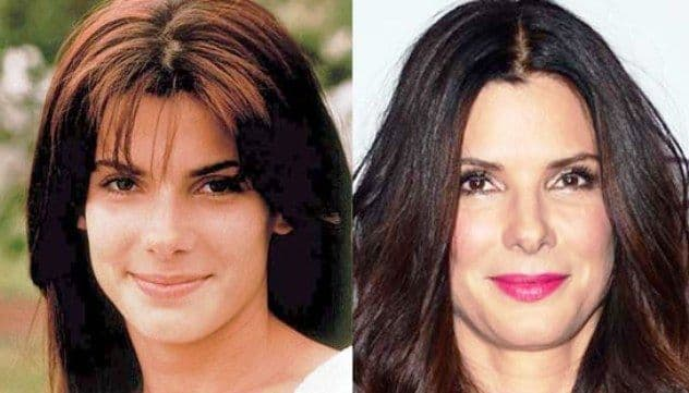 Hollywood Actresses Plastic Surgery Before After photo - 1