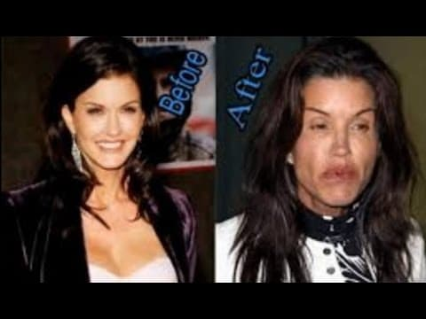 Hollywood Celebrities Plastic Surgery Before And After photo - 1