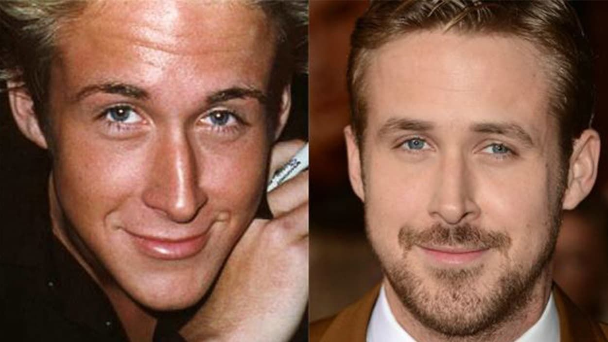 Hollywood Men Plastic Surgery Before And After photo - 1