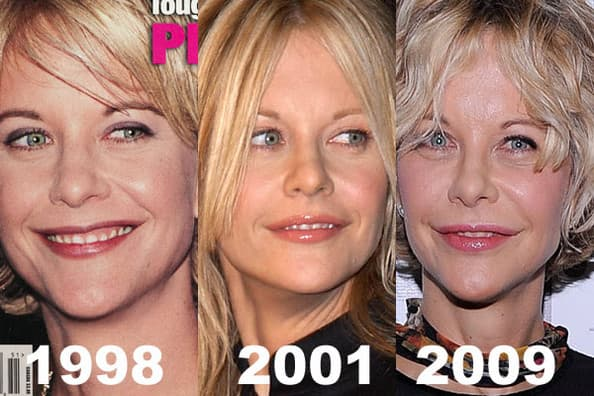 Hollywood Plastic Surgery Before And After photo - 1