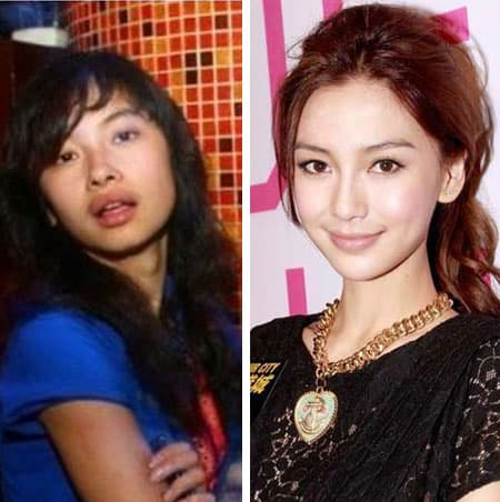 Hong Kong Celebrities Plastic Surgery Before And After photo - 1