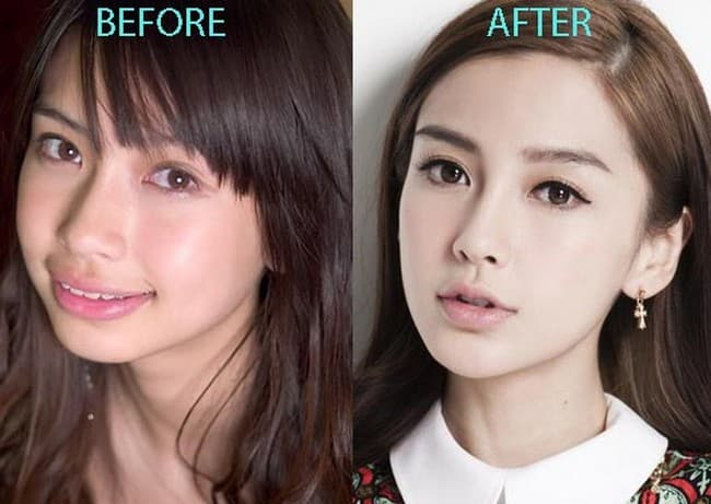 Hong Kong Celebrity Plastic Surgery Before After photo - 1