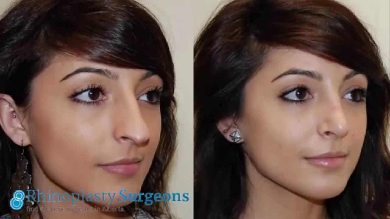 How Long After Nose Surgery Before They Remove The Plastic photo - 1