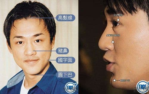 Huang Xaio Ming Before Plastic Surgery photo - 1
