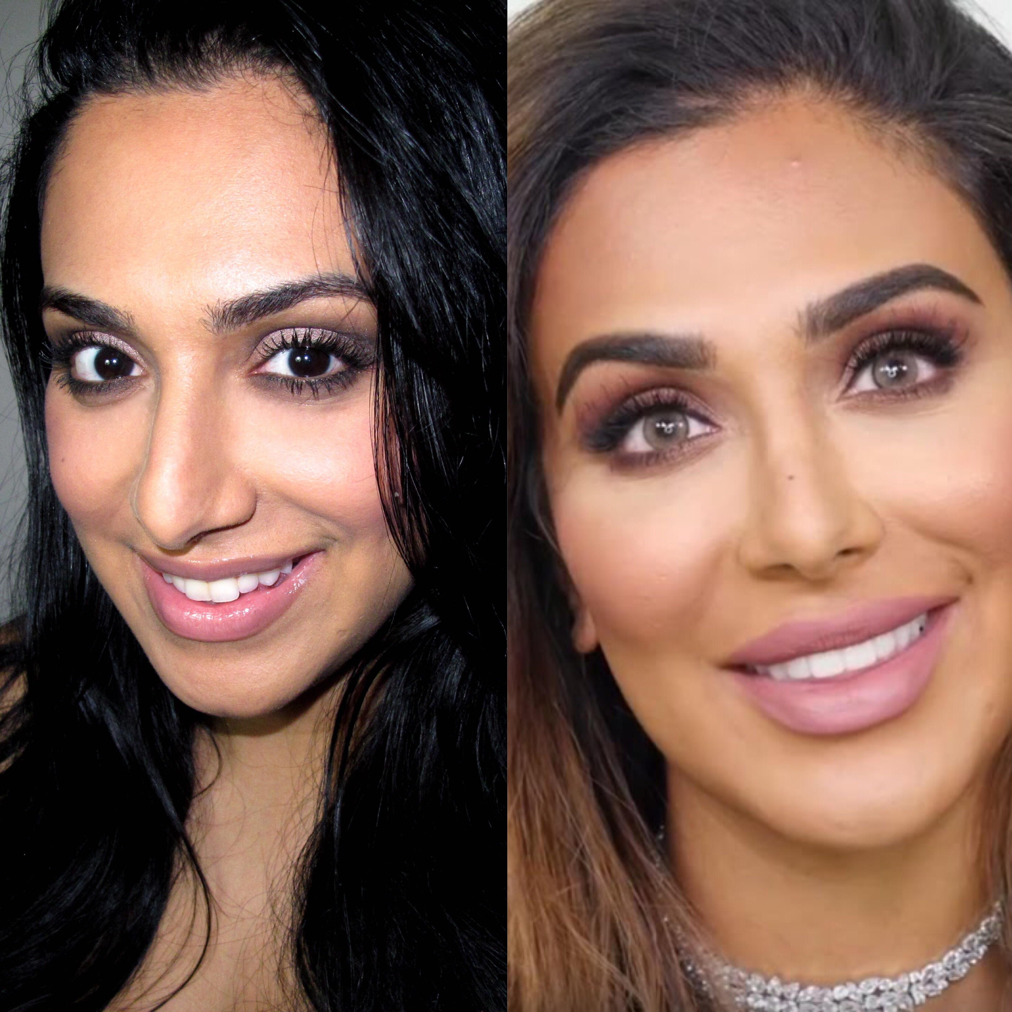 Huda Beauty Before And After Plastic Surgery photo - 1