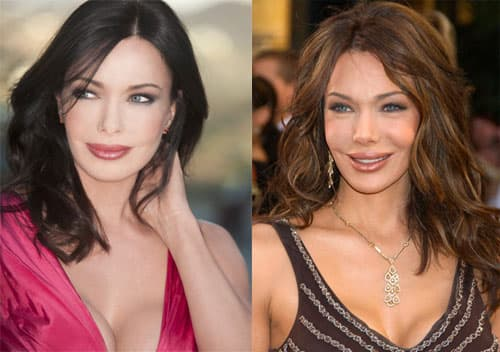 Hunter Tylo Plastic Surgery Before And After Photos photo - 1