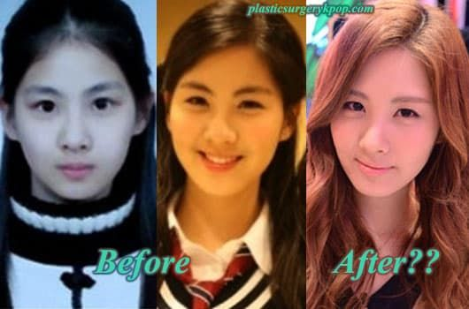 Hyoyeon Snsd Before Plastic Surgery photo - 1