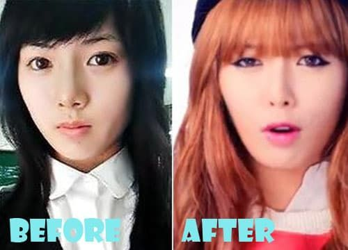 Hyuna Plastic Surgery Before And After photo - 1