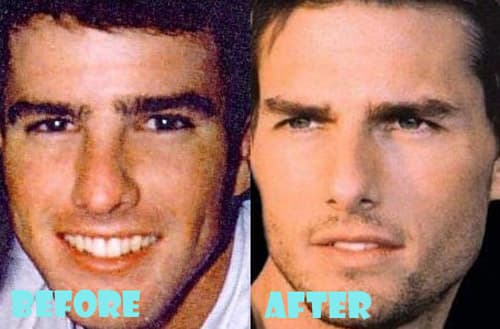 Ian Somerhalder Plastic Surgery Before And After photo - 1