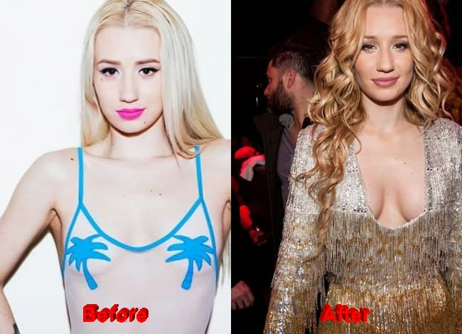 Iggy Azalea Before Plastic Surgery photo - 1