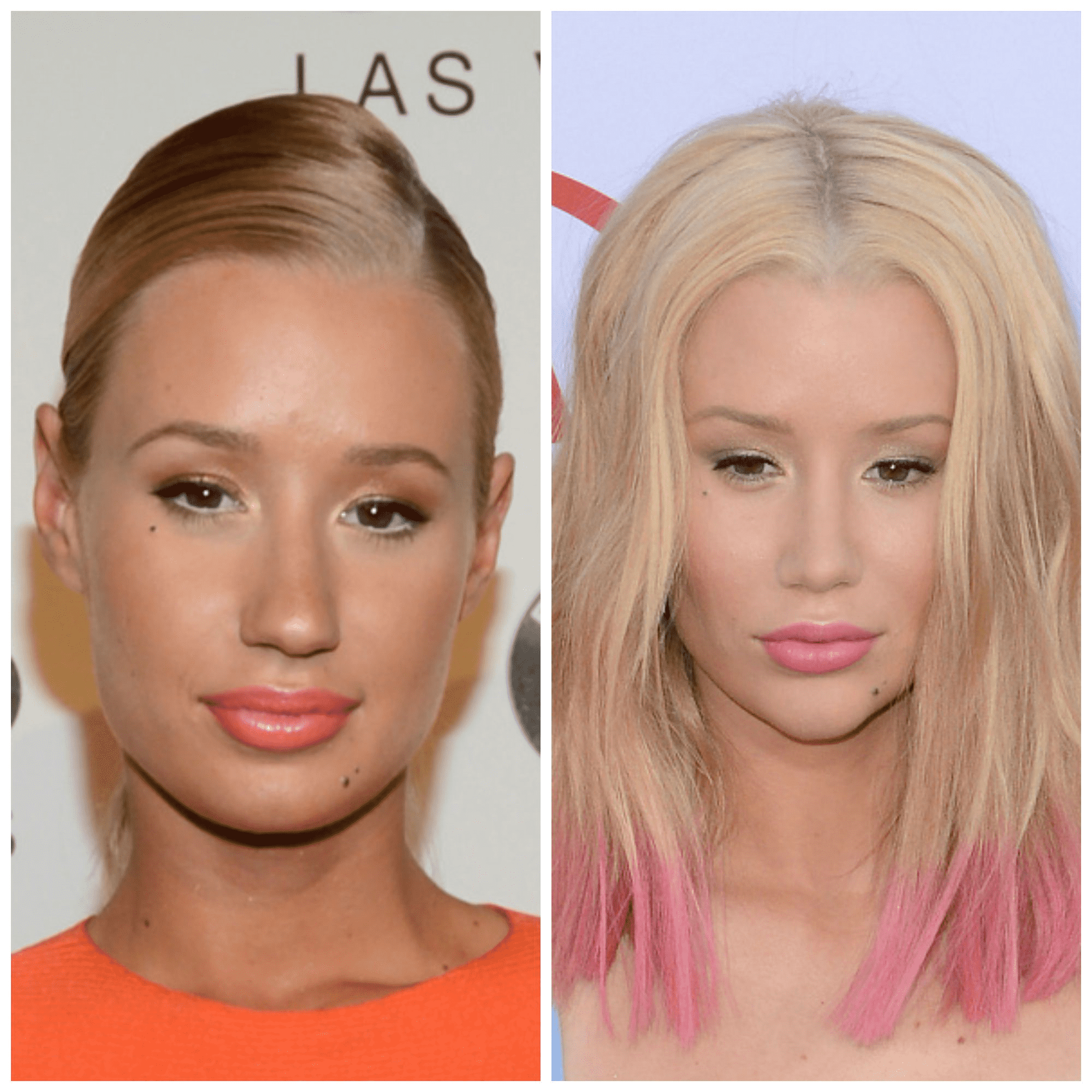 Iggy Azalea Plastic Surgery Face Before And After photo - 1