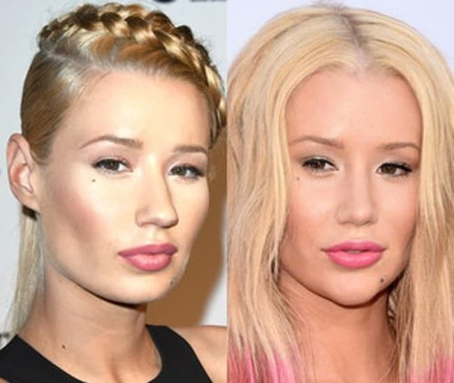 Iggy Azalea Plastic Surgery Face Before And After 2015 photo - 1