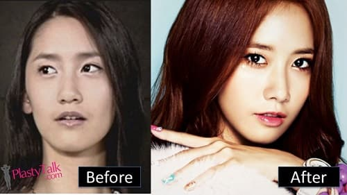 Im Yoona Before Plastic Surgery photo - 1