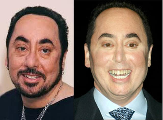 Images Of David Gest Before Plastic Surgery photo - 1