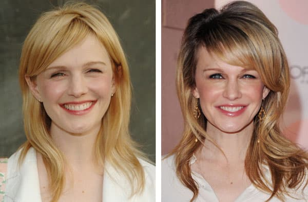 Images Of Kathryn Erbe Before And After Plastic Surgery photo - 1