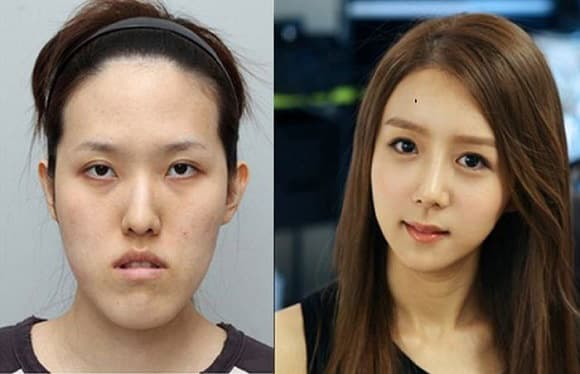 Incredible South Korean Plastic Surgery Before And After photo - 1