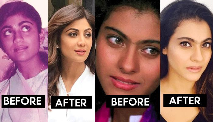 Indian Actresses Plastic Surgery Before And After photo - 1