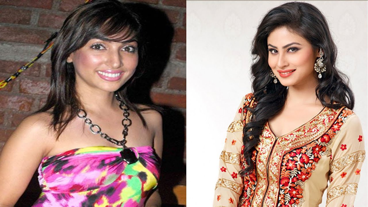 Indian Celebrity Plastic Surgery Before And After photo - 1