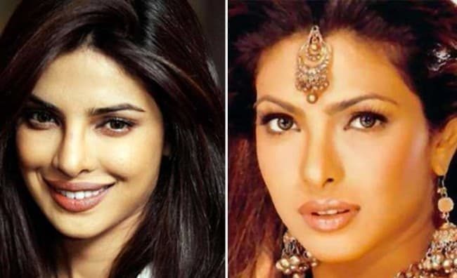 Indian Plastic Surgery Before And After photo - 1