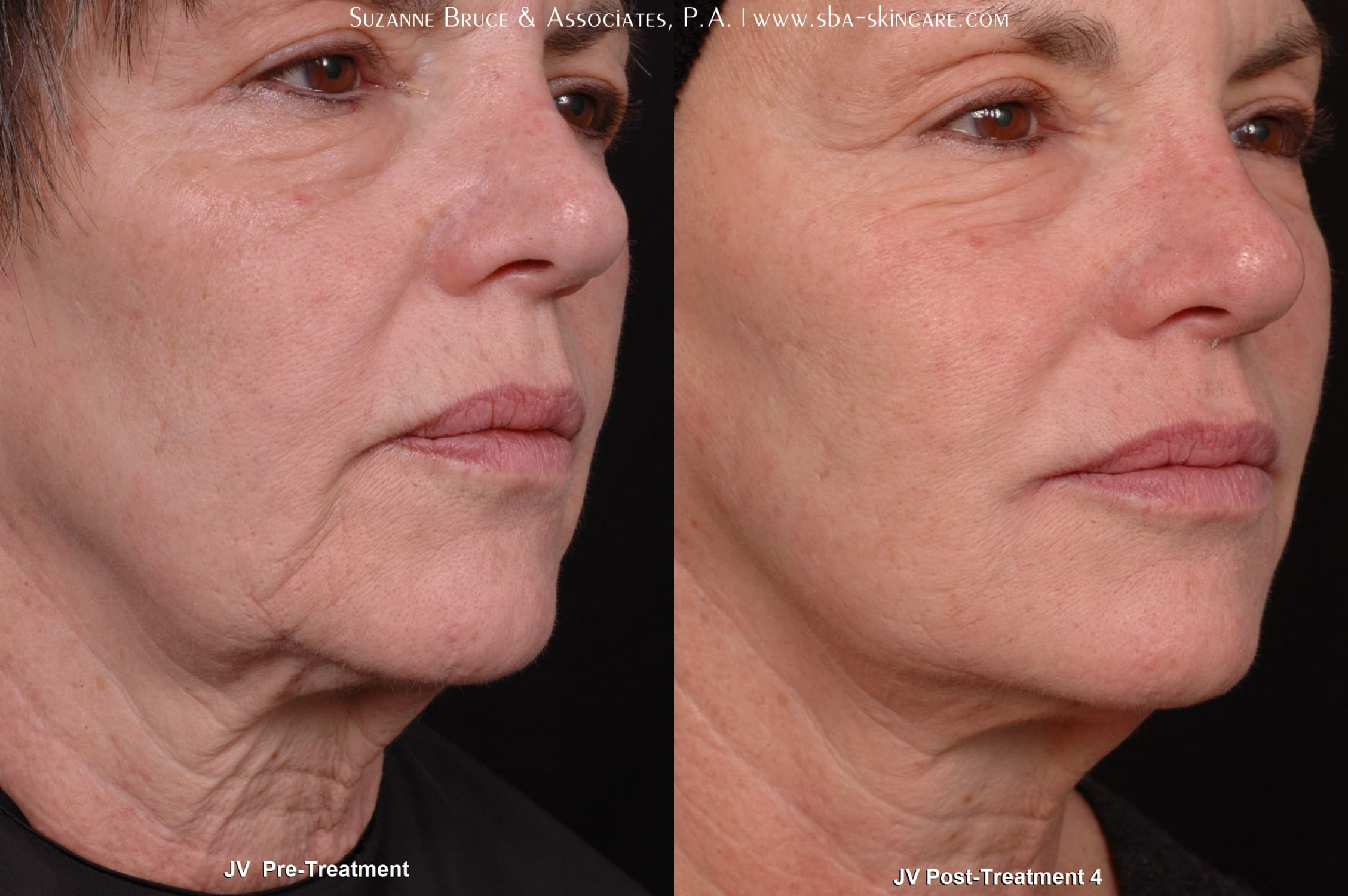 Is It Ok To Use Retinol Before Plastic Surgery photo - 1