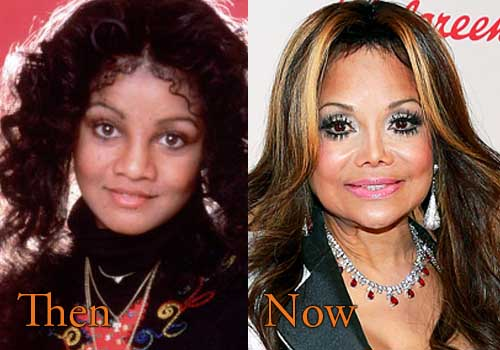 Jackson Family Plastic Surgery Before After photo - 1