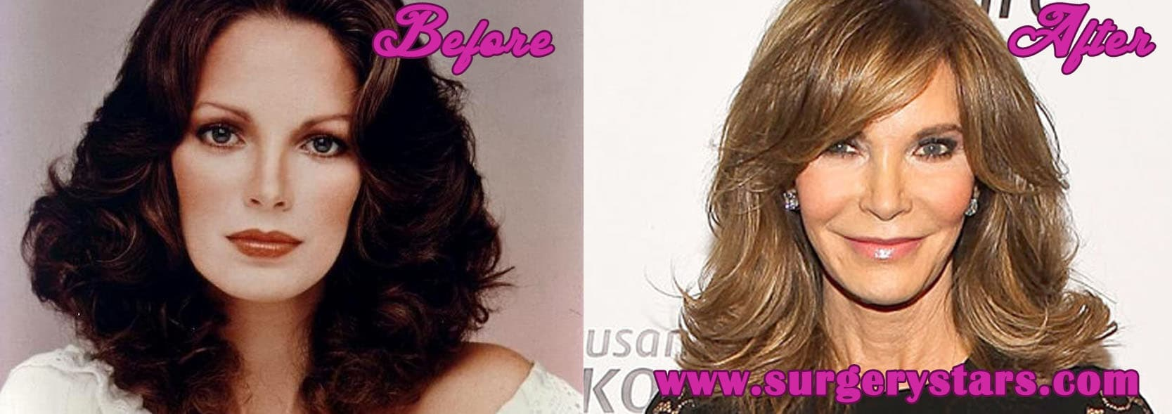Jaclyn Smith Plastic Surgery Before And After photo - 1