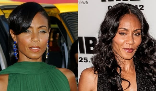 Jada Before And After Plastic Surgery photo - 1