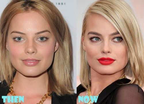 Jaime King Before After Plastic Surgery photo - 1