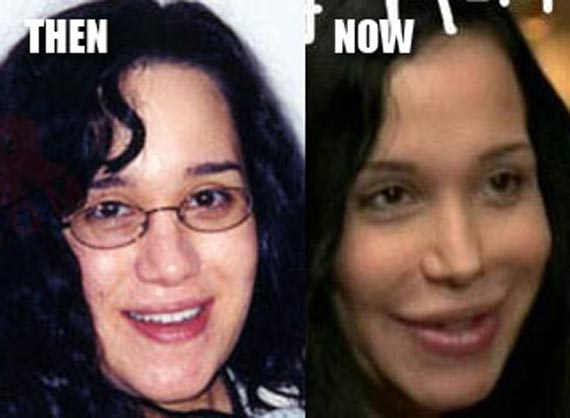 Janeane Garofalo Plastic Surgery Before And After photo - 1
