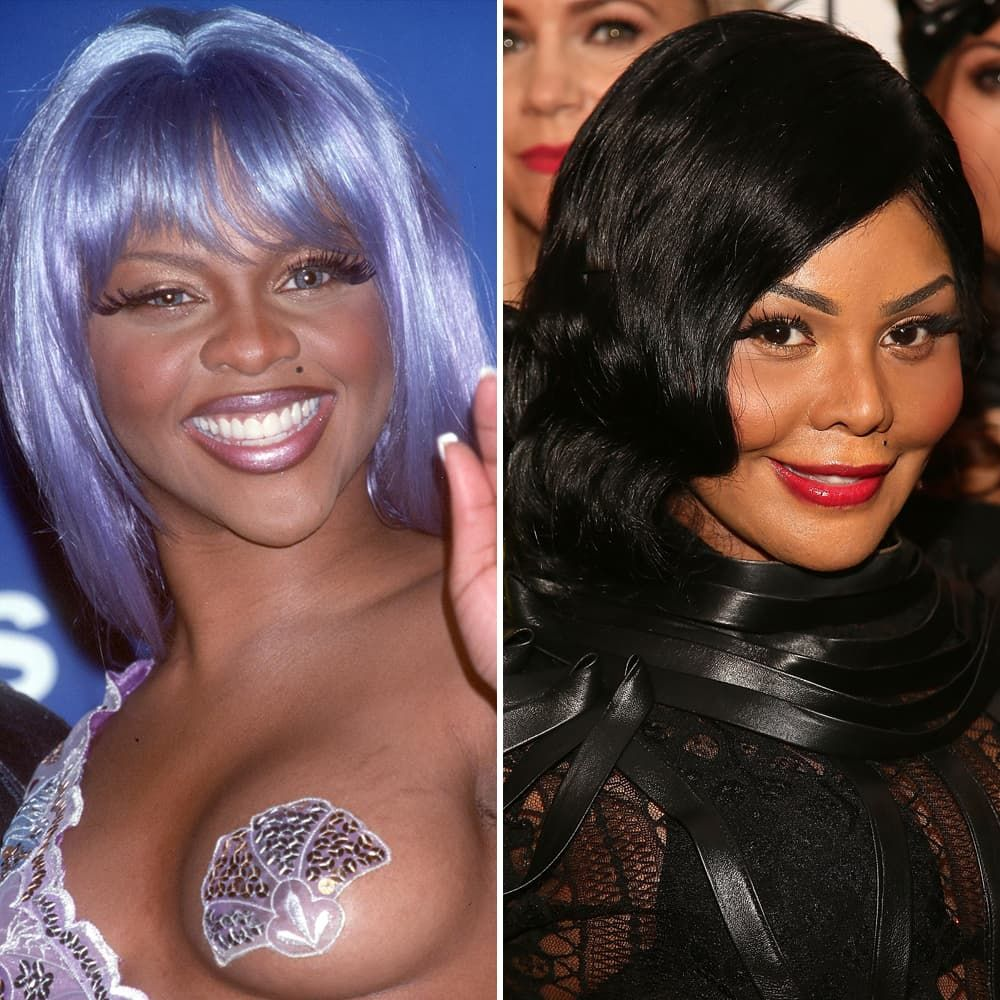 Janet Jackson Before After Plastic Surgery photo - 1