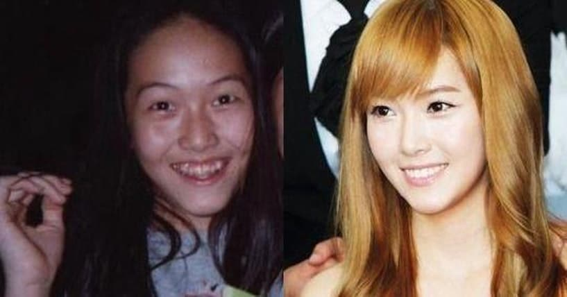 Japanese Actress Plastic Surgery Before After photo - 1