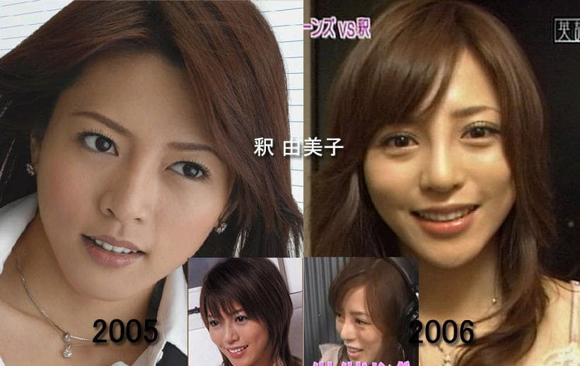 Japanese Plastic Surgery Before And After photo - 1