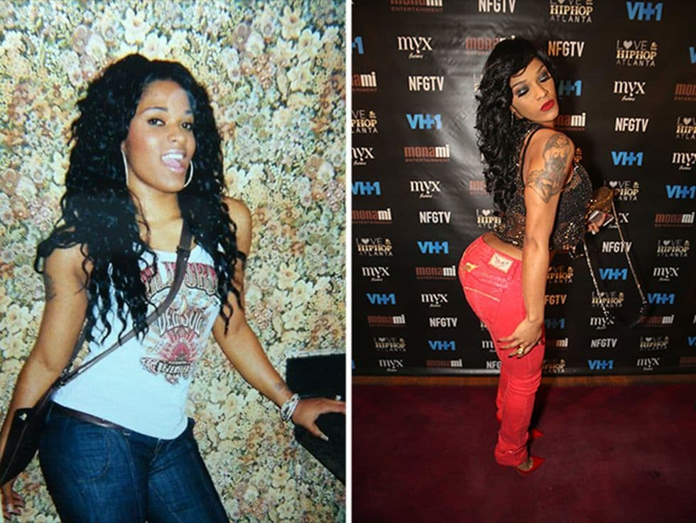Jayla Foxx Before And After Plastic Surgery photo - 1
