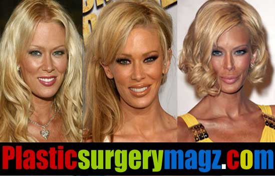 Jenna Jameson Before And After Plastic Surgery photo - 1