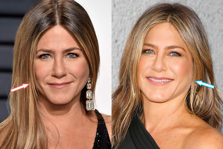 Jennifer Aniston Plastic Surgery Before And After Pictures photo - 1