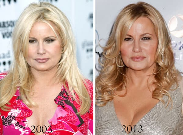 Jennifer Coolidge Before Plastic Surgery photo - 1