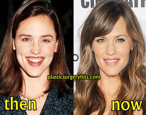 Jennifer Garner Before Plastic Surgery photo - 1