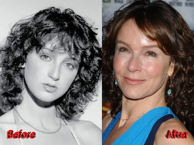 Jennifer Grey Before & After Plastic Surgery photo - 1