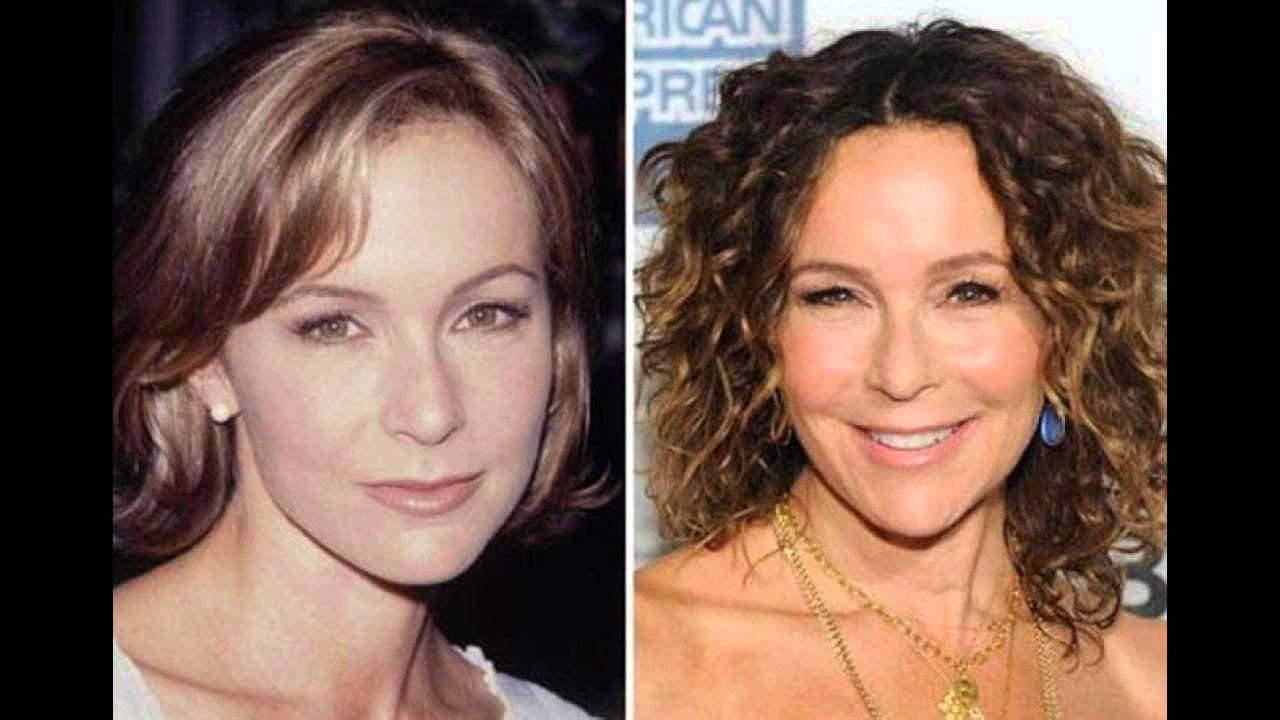 Jennifer Grey Before Plastic Surgery photo - 1