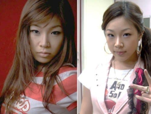Jessi Rapper Before After Plastic Surgery photo - 1