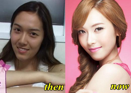 Jessica Jung Snsd Before Plastic Surgery photo - 1
