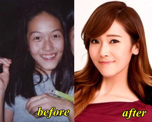 Jessica Snsd Plastic Surgery Before And After photo - 1