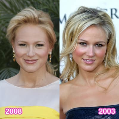 Jewel Before And After Plastic Surgery photo - 1