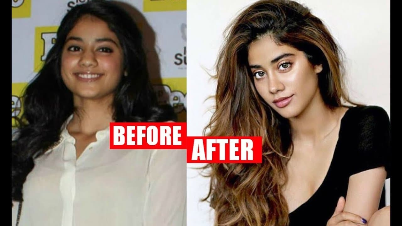 Jhanvi Kapoor Before And After Plastic Surgery photo - 1