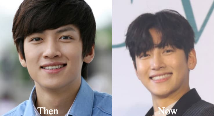 Ji Chang Wook Plastic Surgery Before And After photo - 1